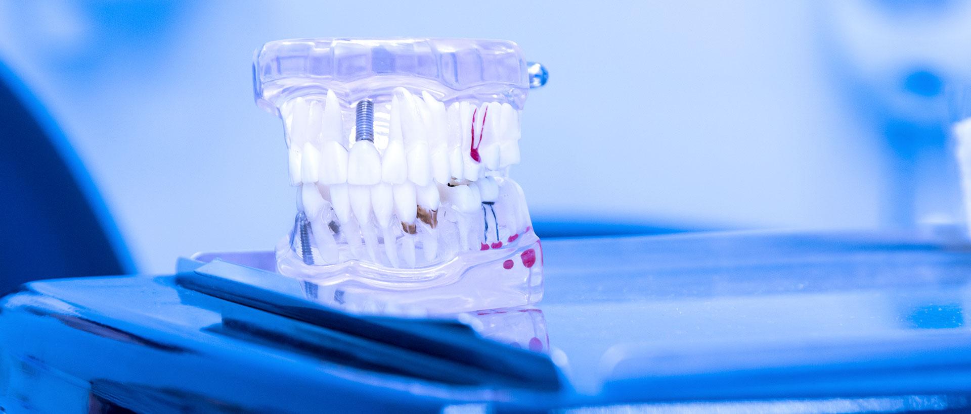 impianti dentali Verona