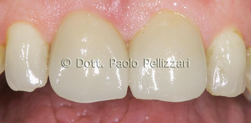 Estetica dentale VERONA caso 1 dopo