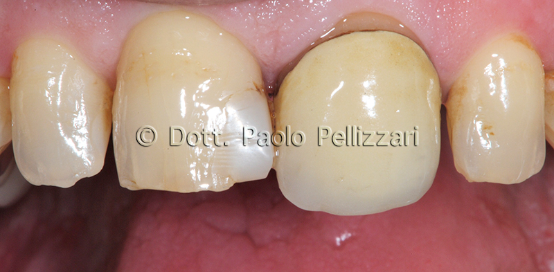Estetica dentale VERONA caso 1 prima