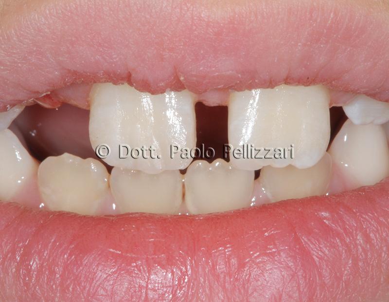 Conservativa Estetica dentale conservativa VERONA caso 2 dopo