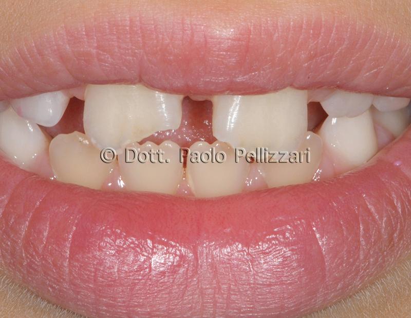 Conservativa Estetica dentale conservativa VERONA caso 2 prima