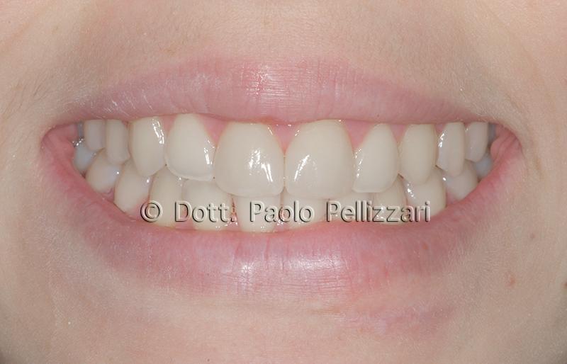 Estetica dentale VeronA caso 3 dopo
