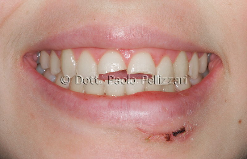 Estetica dentale VERONA caso 3 prima