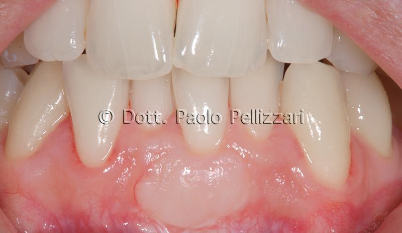 Intervento parodontologia VERONA caso 1 dopo