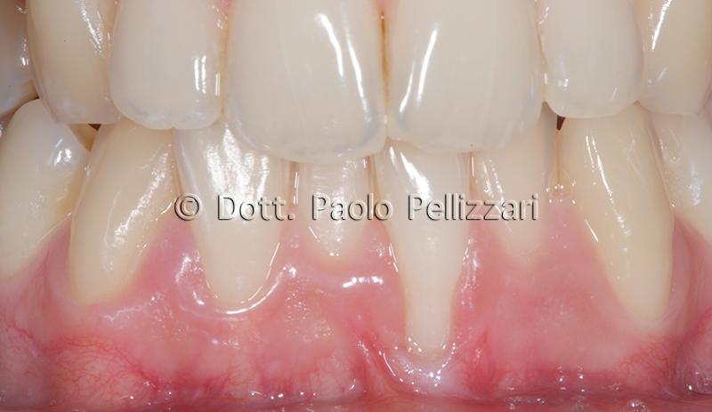Intervento parodontologia VERONA caso 1 prima