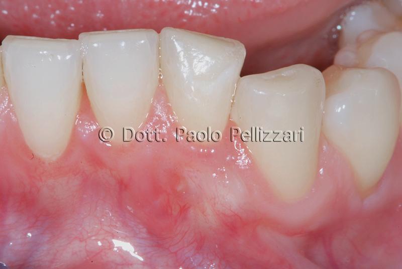 Intervento parodontologia VERONA caso 2 dopo