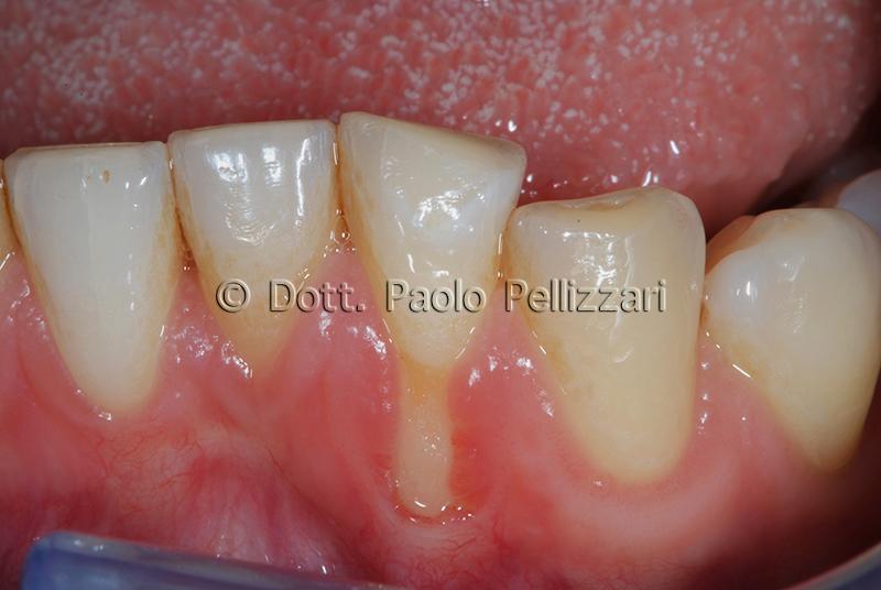Intervento parodontologia VERONA caso 2 prima