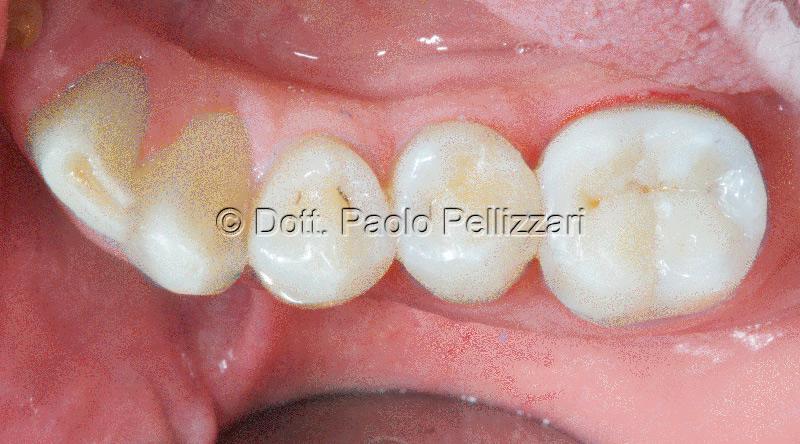 Odontoiatria estetica caso 1 dopo