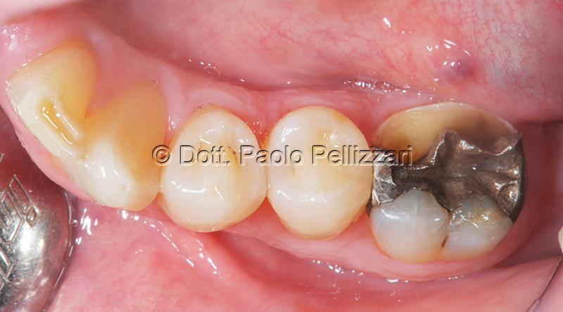 Odontoiatria estetica caso 1 prima