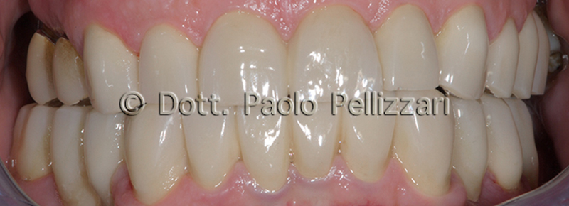 Riabilitazioni dentali totali VERONA caso 1 dopo 1