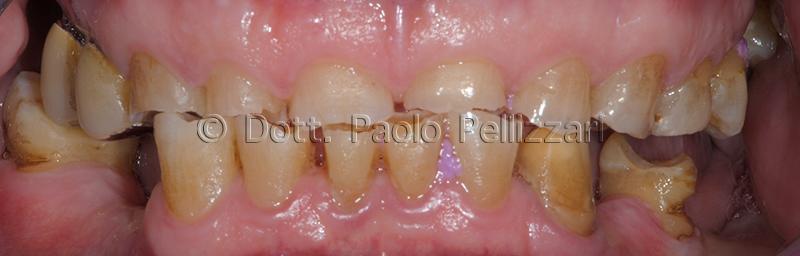 Riabilitazioni dentali totali VERONA caso 1 prima