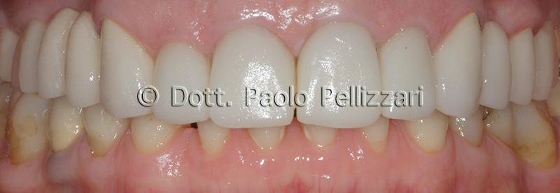 Riabilitazioni dentali totali VERONA caso 2 dopo