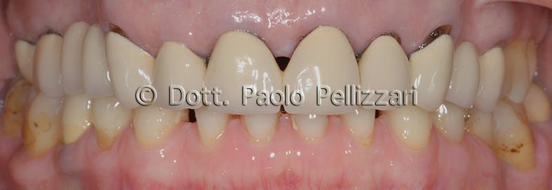 Riabilitazioni dentali totali VERONA caso 2 prima