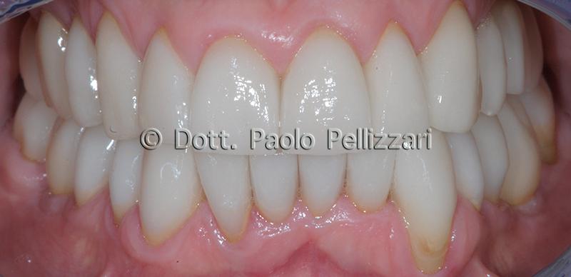 Riabilitazioni dentali totali VERONA caso 3 dopo