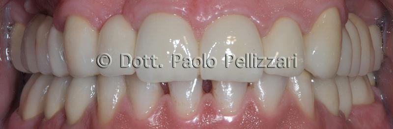 Riabilitazioni dentali totali VERONA caso 4 dopo