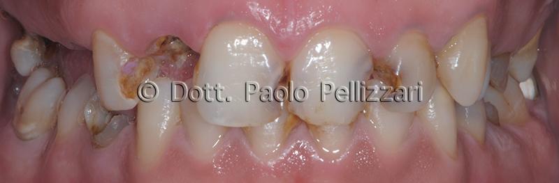 Riabilitazioni dentali totali VERONA caso 4 prima
