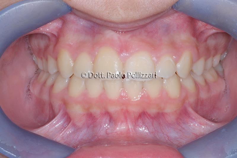 Ortodonzia VERONA caso 1 dopo