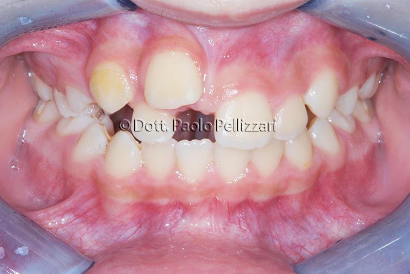 Ortodonzia VERONA caso 1 prima 1